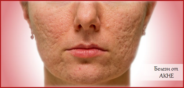 Очищающие и увлажняющие маски для кожи лица