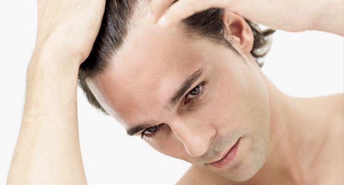 Загуба и опадане на косата